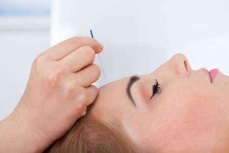 Close-up Of A Young Woman Getting Acupuncture Treatment photo