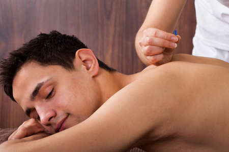 Side view of young man undergoing acupuncture treatment in spa photo