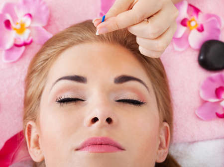 acupuncturist: Close-up Of A Young Woman Getting Acupuncture Treatment Stock Photo