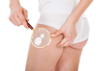 Close-up Of A Woman Checking Cellulite With Magnifying Glass photo