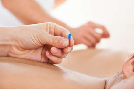 Cropped image of woman receiving acupuncture treatment in beauty spa photo