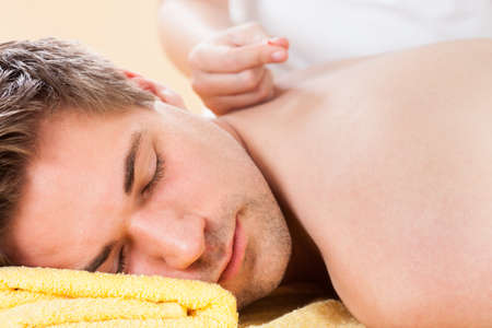 Closeup of relaxed young man receiving acupuncture treatment in spa photo
