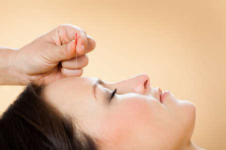 Close-up van de therapeut die acupunctuur behandeling aan vrouwelijke klant in beauty spa