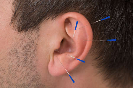 Close-up Of Acupuncture Needles On Man's Ear
