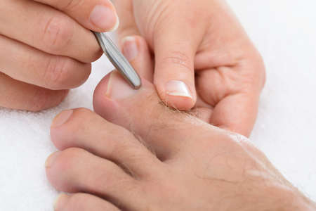chiropody: Close-up Of Manicurist Removing Cuticle From The Nails Of Feet