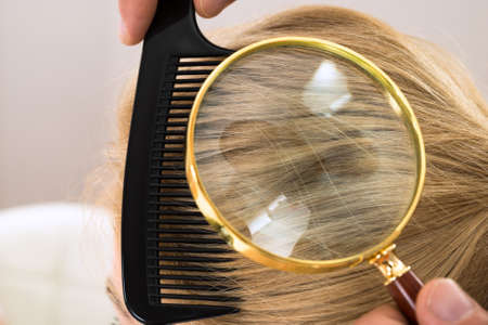Close-up Dermatologist Looking At Patients Blonde Hair Through Magnifying Glass