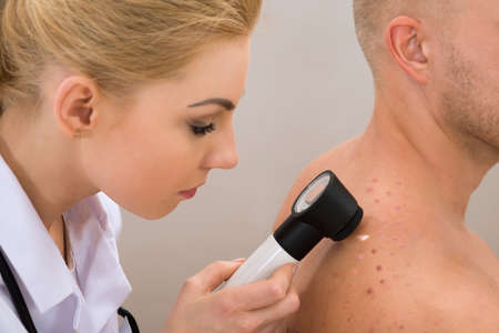 skin disease: Female Doctor Examining Pigmented Skin With Dermatoscope Stock Photo