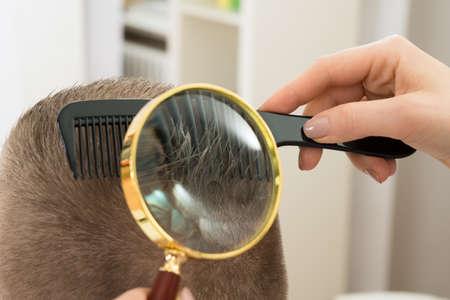 piojos: Primer plano dermatólogo Mirando a pelo del paciente a través de la lupa