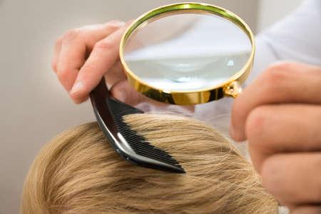 piojos: Primer plano dermatólogo Mirando a Pelo rubio del paciente a través de la lupa