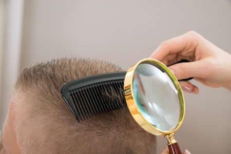 Close-up Dermatologist Looking At Patient's Hair Through Magnifying Glass 스톡 콘텐츠