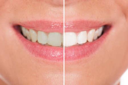 이전과 미백 후 여자 치아의 근접 스톡 콘텐츠