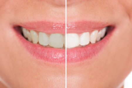 perfect teeth: Close-up Of Woman Teeth Before And After Whitening
