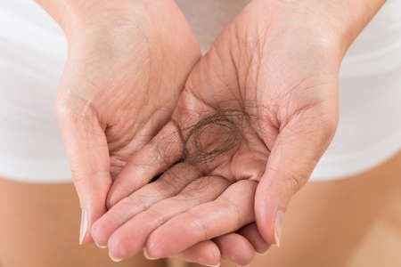 hair treatment: Close-up Of Person Hand Holding Loss Hair Stock Photo