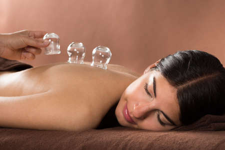 women holding cup: Woman Lying On Front Receiving Cupping Treatment On Back Stock Photo