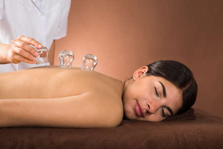 cupping glass cupping: Young Female Lying On Front Receiving Cupping Treatment On Back