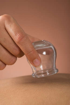 cupping: Close-up Of Person Hand Giving Cupping Treatment To Woman