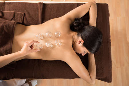 cupping: High Angle View Of Therapist Giving Cupping Therapy To Woman Stock Photo