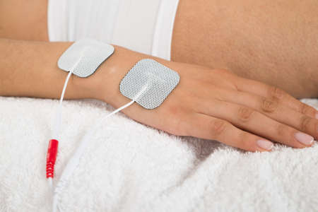 therapeutics: Close-up Of A Woman With Electrodes On Her Hand
