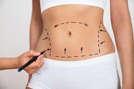 Persoon Hand Tekening Lijnen Op Een Vrouw Buik als merk voor abdominale cellulitis correctie Stockfoto