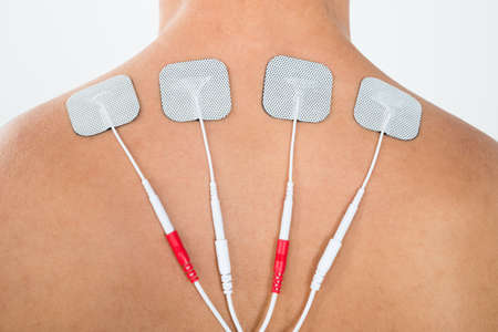 Close-up Of Man With Electrostimulator Electrodes On His Back