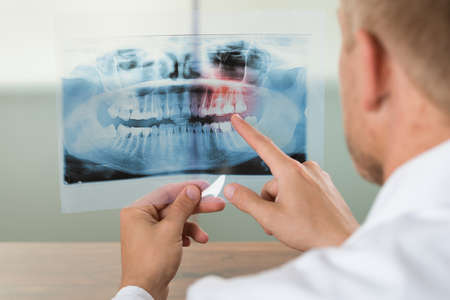 Close-up Of Male Doctor Pointing At Teeth X-ray