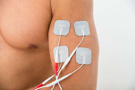 therapeutics: Close-up Of Electrodes On Arm To Massage The Biceps