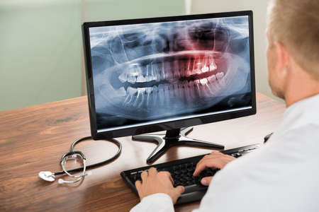 Close-up Of Male Doctor Looking At Teeth X-ray On Computer In Hospital Imagens
