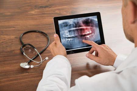 디지털 태블릿에 인간의 치아 엑스레이 찾고 의사의 근접