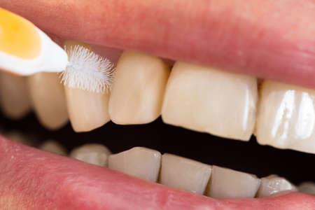 higiene oral: Primer plano de un hombre que limpia sus dientes Foto de archivo