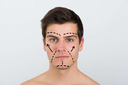 perforation: Close-up Of Young Man With Perforation Lines Marked On Face Over White Background Stock Photo