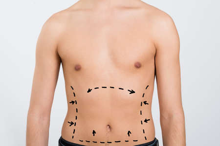 correction lines: Close-up Of Mans Abdomen With Correction Lines For Abdominal Surgery