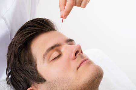Close-up Of Young Man Receiving Acupuncture Treatment Stock Photo