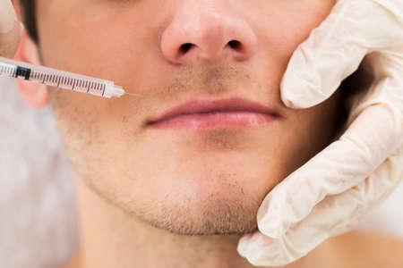 kunststoff: Close-up Der Doktor In Glove Giving Injektion auf Gesicht des Menschen in der Klinik Lizenzfreie Bilder
