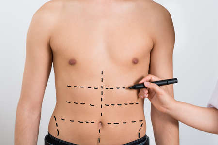liposuction: Close-up Of Person Hands Drawing Correction Lines On Abdomen Of Man