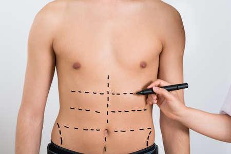 Plastik: Close-up Person H�nde Zeichnung Korrektur Linien auf Abdomen Of Man