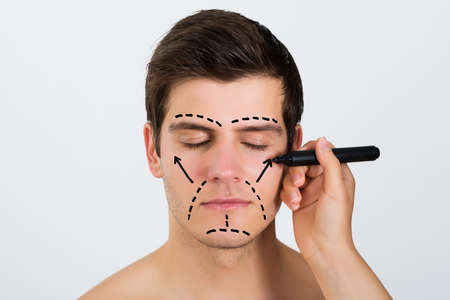 surgery: Close-up Of Person Hands Making Lines With Pen On Face Of Young Man