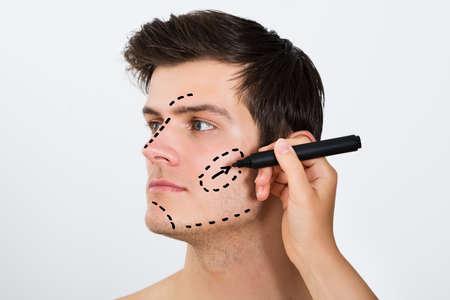 cosmeticos: Primer plano de la persona Manos Dibujo Línea Corrección Con La Pluma En La Cara Hombre Por Cirugía Plástica Foto de archivo