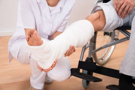 bone fracture: Close-up Of A Female Doctor Holding Disabled Patients Leg Stock Photo