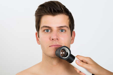 Close-up de la personne Mains examen jeune homme face avec Dermatoscope