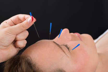 acupuncture needles: Close-up Person Hands Putting Acupuncture Needle On Face Of Young Woman