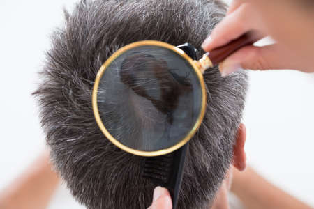 High Angle View Of Dermatologist Checking Patients Hair In Magnifying Glass Stock Photo