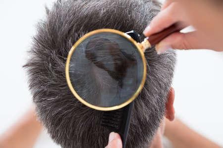 hombre calvo: Vista elevada de dermat�logo Comprobaci�n del pelo del paciente en la lupa