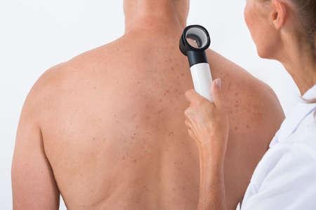 Vrouwelijke arts die acne huid op de patiënt terug met Dermatoscoop Stockfoto