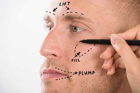 Plastik: Close-up von Gesicht eines Mannes mit Korrektur Linie gezeichnet von Hand der Person, f�r Plastische Chirurgie