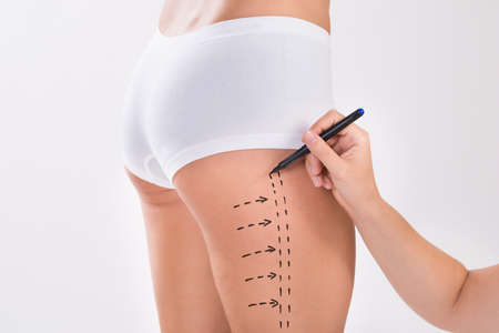 liposuction: Cropped image of surgeon preparing woman for liposuction surgery on thigh over white background