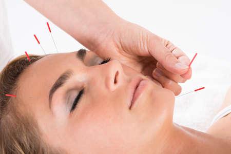Nahaufnahme der Hand der Durchf�hrung der Akupunktur-Therapie auf den Kopf und das Kinn am Salon Lizenzfreie Bilder