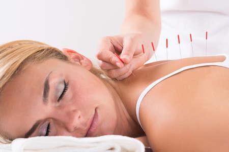 Close-up van de hand uitvoeren van acupunctuur therapie op de rug van de klant bij salon Stockfoto