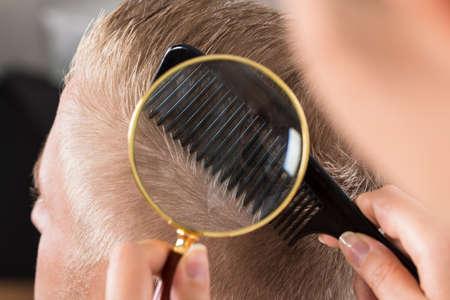 piojos: Primer plano de un médico Mirando a pelo del paciente a través de la lupa