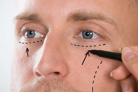 facial: Close-up Of Persons Hand Drawing Correction Line With Pen Near Mans Eyes