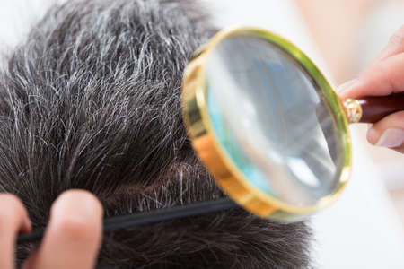 hormone  male: Close Up Of Dermatologist Checking Patients Hair Through Magnifying Glass